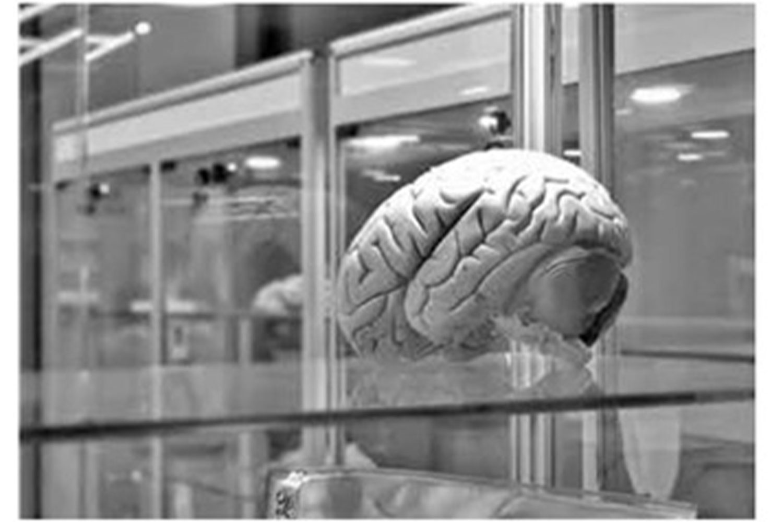 Beyin İmplantları Hafızayı Yüzde 20 Artırıyor