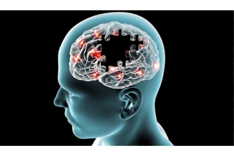 Alzheimer Hastalığı İlk Belirtilerden 20 Yıl Önce Başlıyor